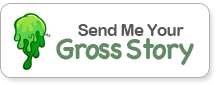 Send Me Your Gross Story