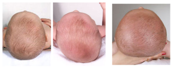 Baby Head Shape