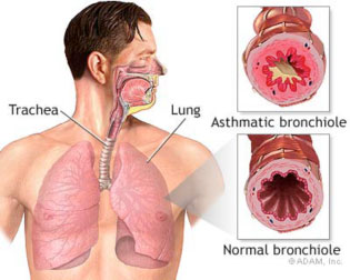 What triggers asthma? An asthmatic bronchiole is shown blocked